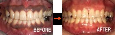 歯茎のメラニン除去