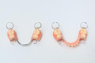保険治療の入れ歯